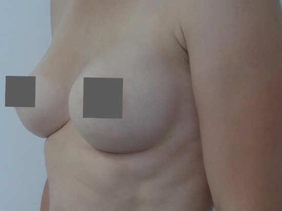 Implantatwechsel Stuttgart