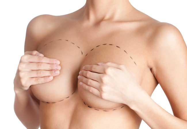 Brustvergrößerung mit Eigenfett bei Dr. Khorram