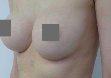 Brustvergrößerung vorher B – nachher D