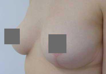 Brustverkleinerung Von G auf C vorher nachher