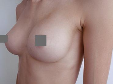 Vorher Nachher Brustvergrößerung von A auf C