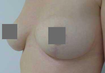 Brustverkleinerung Von F auf C vorher nachher