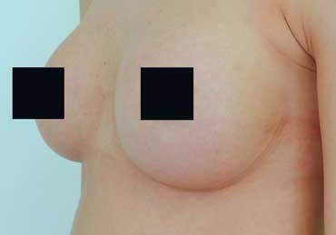 Brustvergrößerung  von A auf C vorher nachher