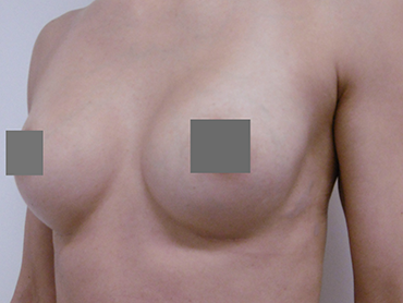 Brustvergrößerung von A auf B vorher nachher