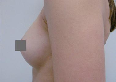 Vorher Nachher Tropfenförmige Implantate, von A auf C