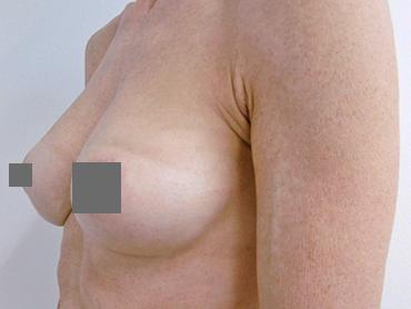 Vorher Nachher Brüste vergrößern von A auf B