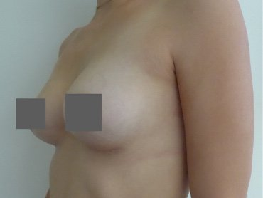 Bruststraffung  mittels Implantat vorher nachher