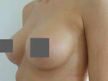 Brustvergrößerung Vorher Nachher Tropfenförmige Implantate, von A auf C