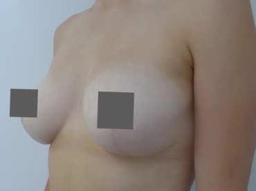 Von E auf B Brustverkleinerung vorher nachher
