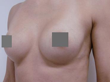 Vorher Nachher Brustvergrößerung von A auf B