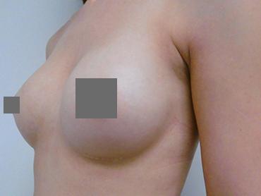 Vorher Nachher Tropfenförmige Implantate, von A auf B